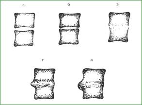 Гнойный спондилит, динамика рентгенологической картины